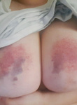 Aftermath from Spanking
