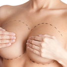 breast operation